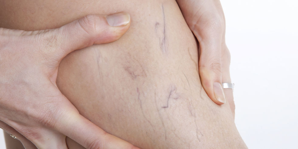 9 Things You Need To Know About Varicose And Spider Veins