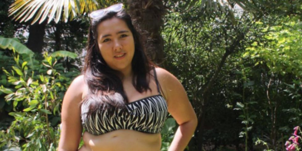 After Being Bullied About Her Surgical Scars, This Woman Responded In The Most Amazing Way